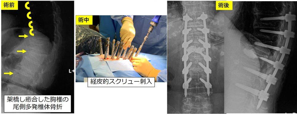 骨折 手術 圧迫